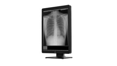 Display für die Röntgen- und Mammografiediagnostik