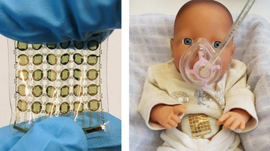 Intelligentes Pflaster für schonendere Atemunterstützung von Frühgeborenen