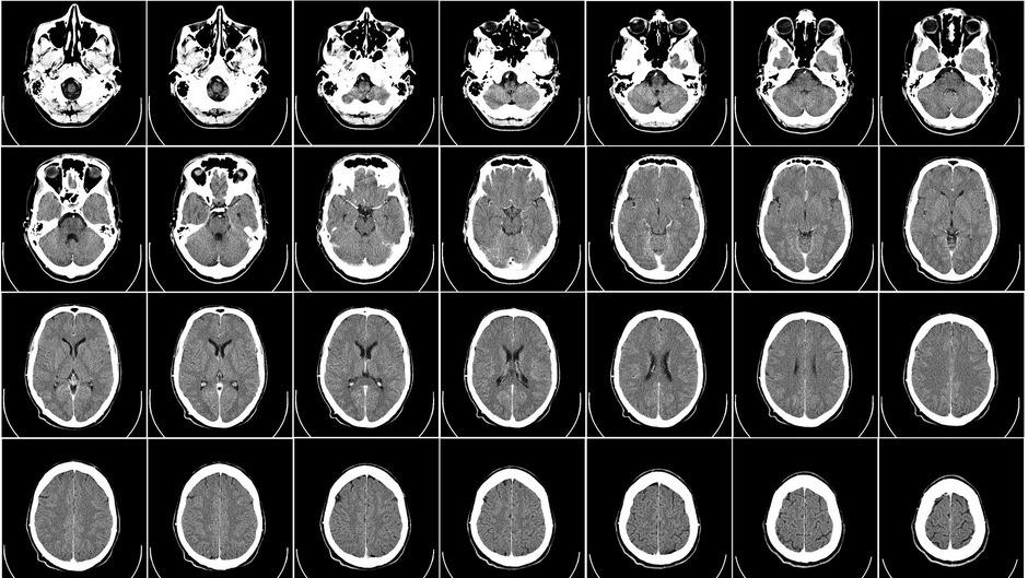 Induktions-Tomografie – neue Möglichkeiten für Medizin und Sicherheit